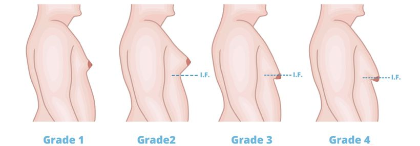 Sypačipozor! Podle jakých příznaků na těle poznáte užívání anabolických steroidů?