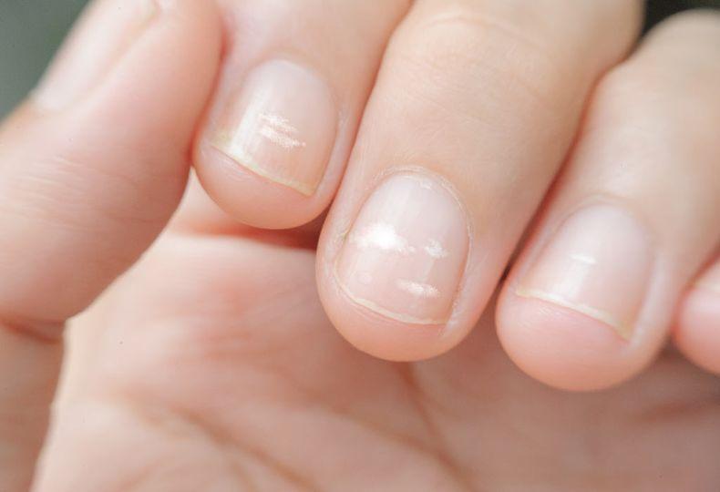 Čím jsou způsobeny bílé skvrny na nehtech?