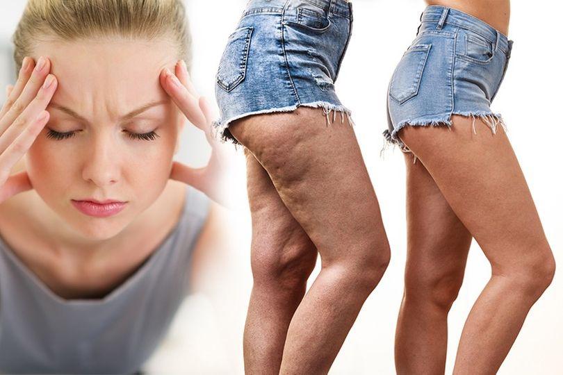 Trápí vás bolest hlavy nebo celulitida? 7 tipů, jak s nimi můžete bojovat